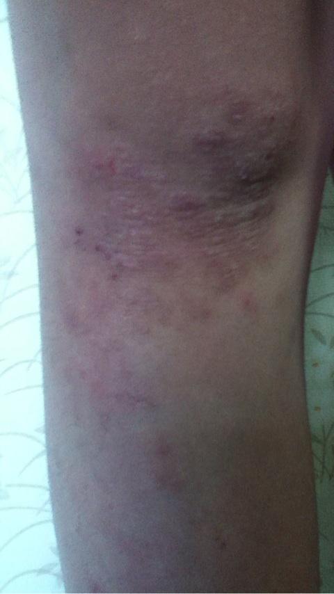 乾燥性皮膚炎